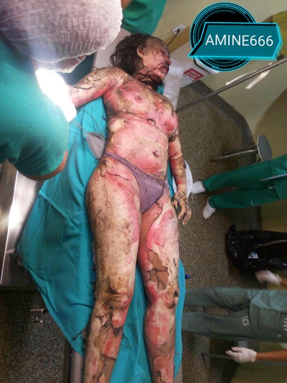 【閲覧注意】浮気した夫、愛人と共にガソリンかけられ燃やされる・・・(画像)・1枚目