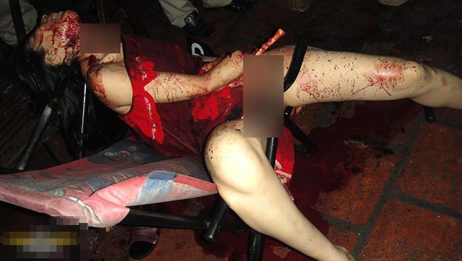 【閲覧注意】強盗に襲われた女性、手首まで盗まれる・・・(画像)・3枚目