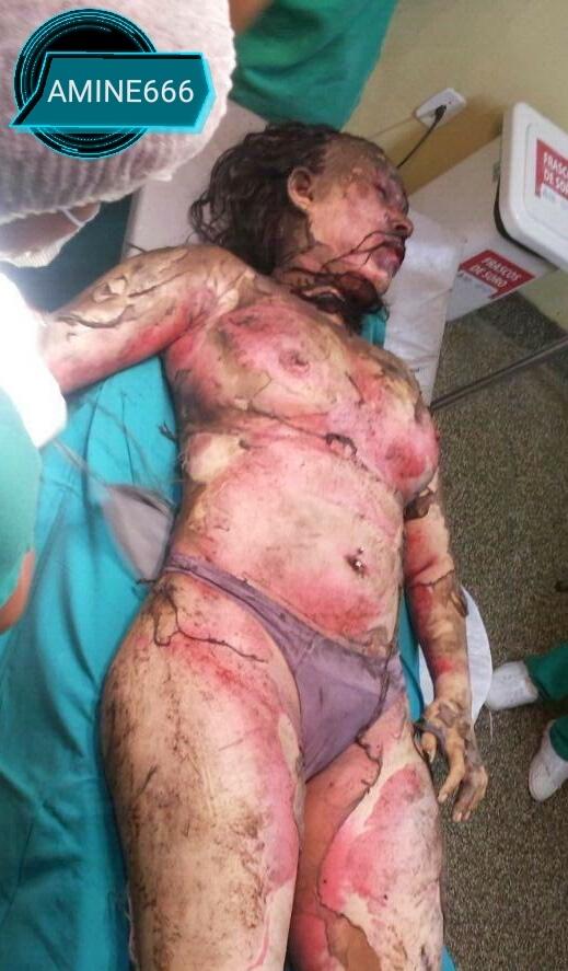 【閲覧注意】浮気した夫、愛人と共にガソリンかけられ燃やされる・・・(画像)・2枚目