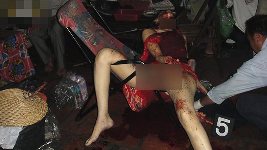 【閲覧注意】強盗に襲われた女性、手首まで盗まれる・・・(画像)・4枚目