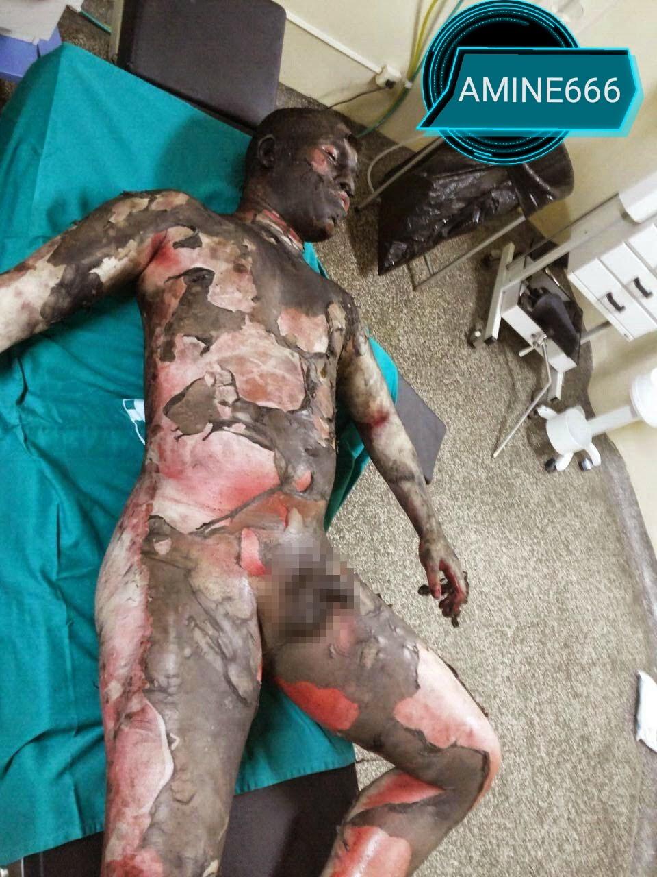 【閲覧注意】浮気した夫、愛人と共にガソリンかけられ燃やされる・・・(画像)・3枚目