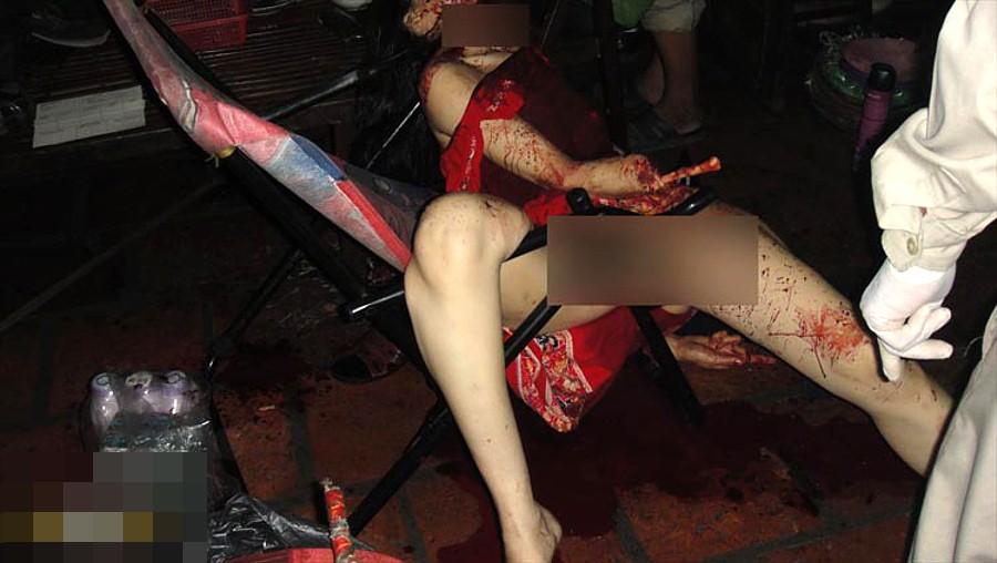 【閲覧注意】強盗に襲われた女性、手首まで盗まれる・・・(画像)・1枚目