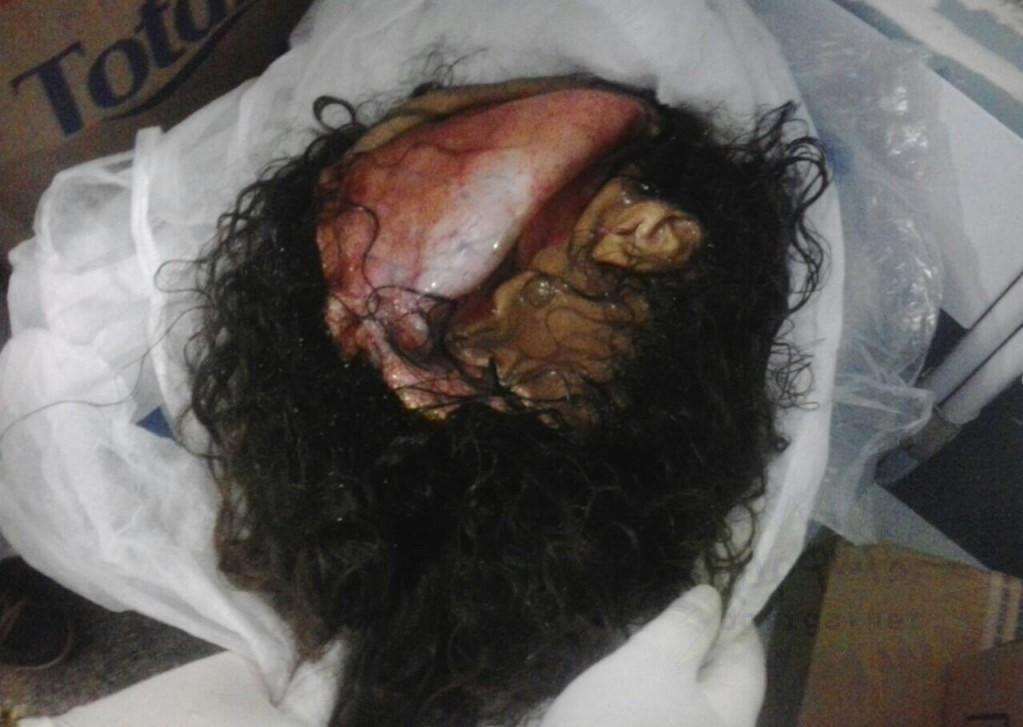 【閲覧注意】頭の皮が全てズル剥けた女性をご覧ください。。(画像)・5枚目