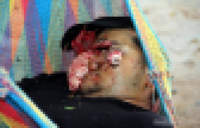"""【超閲覧注意】恨みを晴らすべくターゲットの顔面を""""散弾銃""""で吹き飛ばした事件現場。。(画像)・3枚目"""