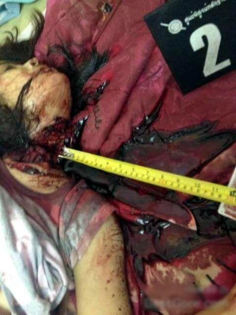 【閲覧注意】レイプされた女性が発見されるが首が皮一枚で繋がっている状態に・・・(動画)・5枚目