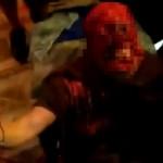 【超閲覧注意】ピット・ブルに襲われた女性の顔面をご覧ください・・・(動画)