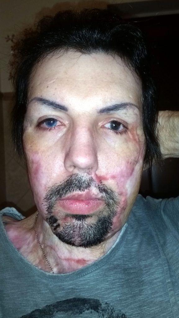 【ケロイド】33歳イタリア人男性、彼女にとんでもないモノをブッカケられる!!(画像あり)・2枚目