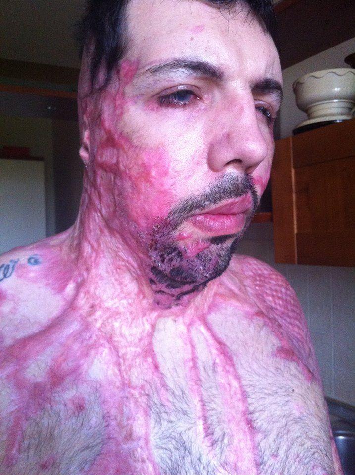 【ケロイド】33歳イタリア人男性、彼女にとんでもないモノをブッカケられる!!(画像あり)・7枚目