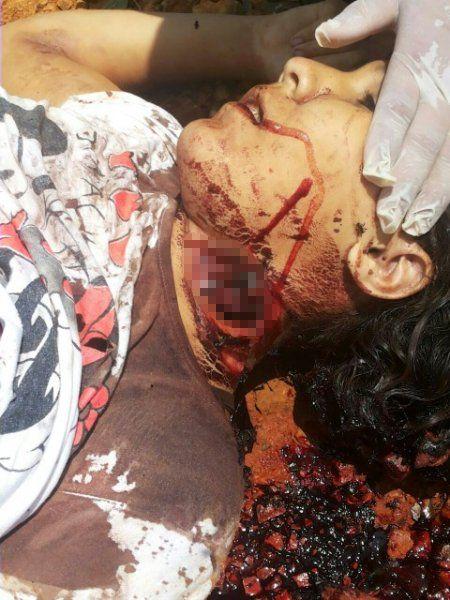 【閲覧注意】ブラジルの13歳少女、レイプされ悲惨な姿で発見される・・・・・(画像)・4枚目