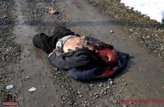 【閲覧注意】ロシアで交通事故に遭った男性、勢い強すぎて顔がモゲる・・・・・(画像)・1枚目