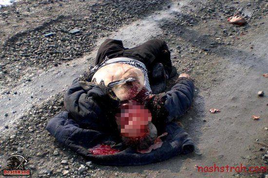 【閲覧注意】ロシアで交通事故に遭った男性、勢い強すぎて顔がモゲる・・・・・(画像)・2枚目