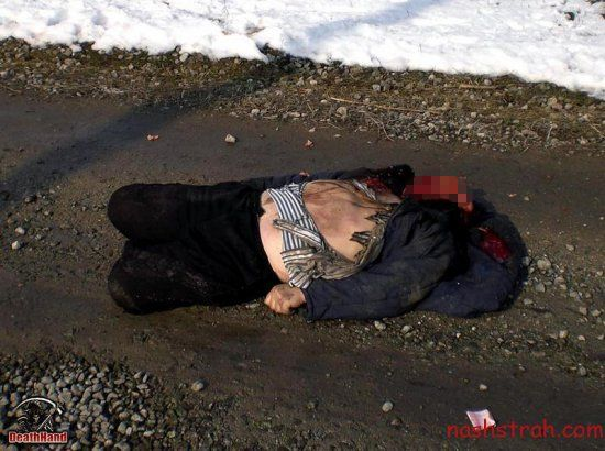 【閲覧注意】ロシアで交通事故に遭った男性、勢い強すぎて顔がモゲる・・・・・(画像)・3枚目