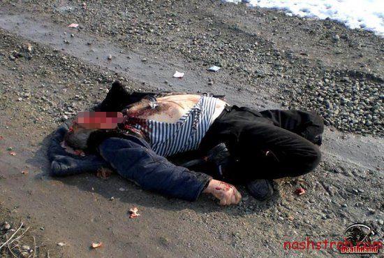 【閲覧注意】ロシアで交通事故に遭った男性、勢い強すぎて顔がモゲる・・・・・(画像)・4枚目