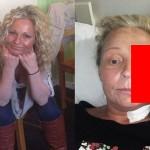 【閲覧注意】熱いストーブで頭を打った女性、感染症で顔の半分がケロイドになってしまう・・・・・(画像)