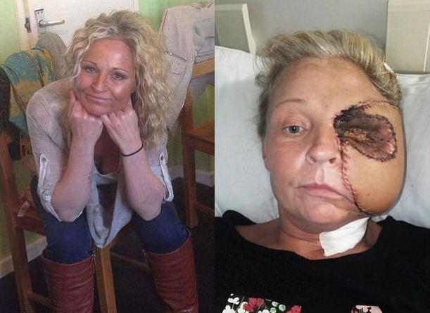 【閲覧注意】熱いストーブで頭を打った女性、感染症で顔の半分がケロイドになってしまう・・・・・(画像)・1枚目