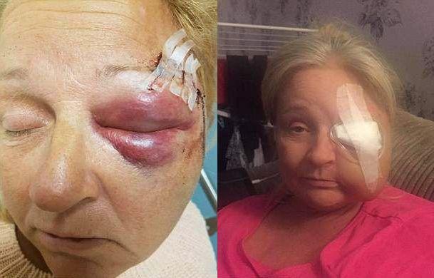 【閲覧注意】熱いストーブで頭を打った女性、感染症で顔の半分がケロイドになってしまう・・・・・(画像)・2枚目