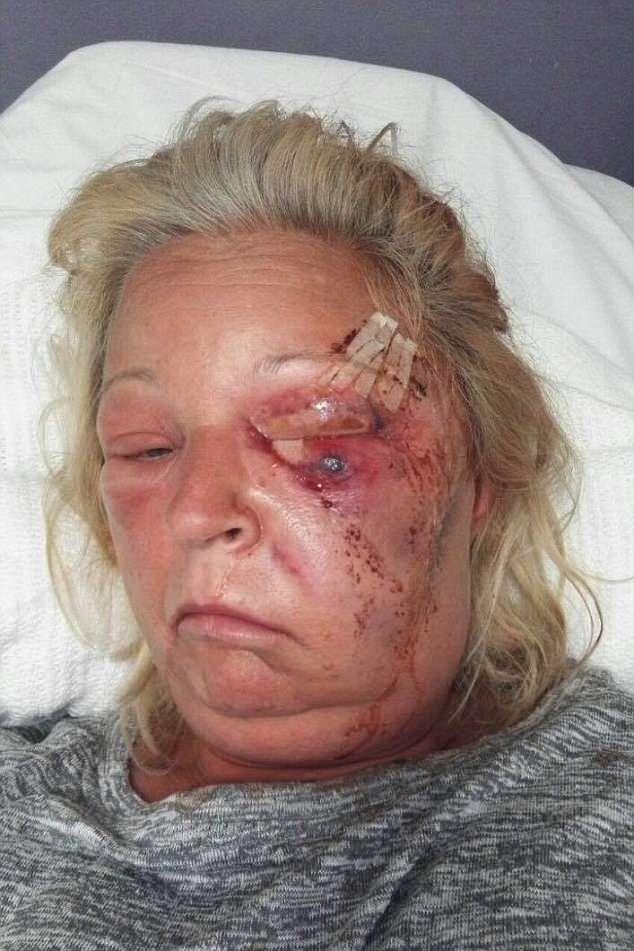 【閲覧注意】熱いストーブで頭を打った女性、感染症で顔の半分がケロイドになってしまう・・・・・(画像)・3枚目