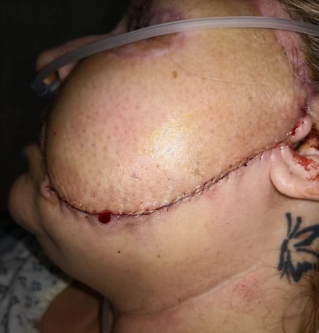 【閲覧注意】熱いストーブで頭を打った女性、感染症で顔の半分がケロイドになってしまう・・・・・(画像)・4枚目