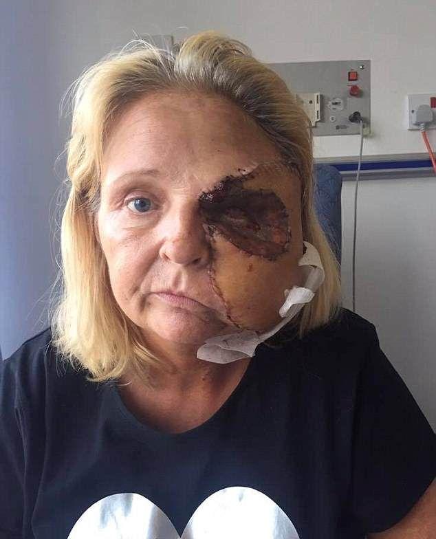 【閲覧注意】熱いストーブで頭を打った女性、感染症で顔の半分がケロイドになってしまう・・・・・(画像)・5枚目
