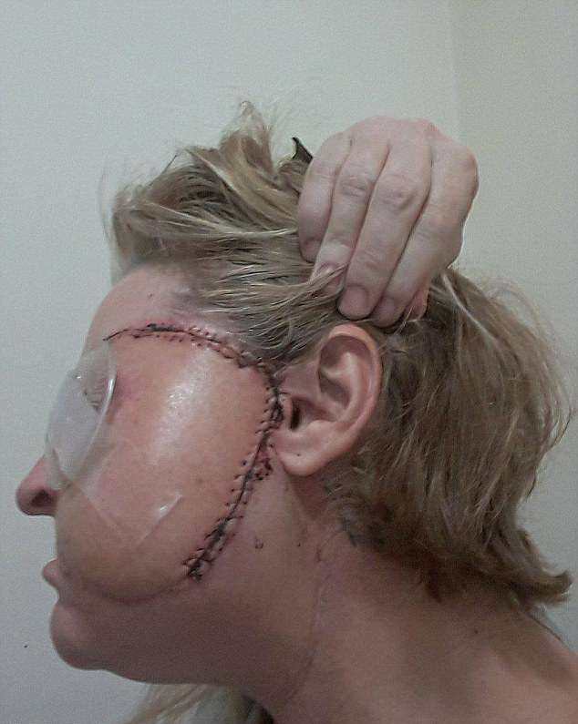 【閲覧注意】熱いストーブで頭を打った女性、感染症で顔の半分がケロイドになってしまう・・・・・(画像)・6枚目