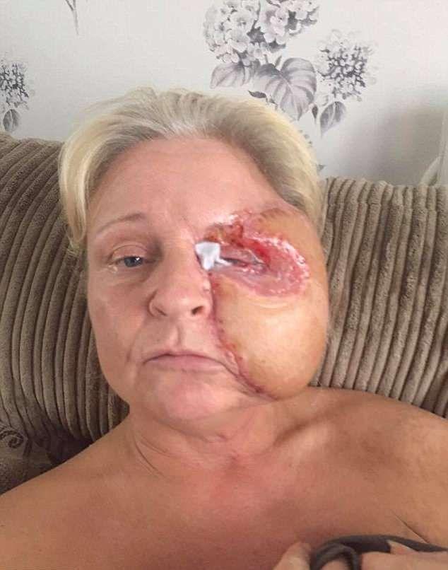 【閲覧注意】熱いストーブで頭を打った女性、感染症で顔の半分がケロイドになってしまう・・・・・(画像)・7枚目