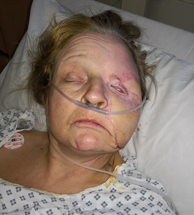 【閲覧注意】熱いストーブで頭を打った女性、感染症で顔の半分がケロイドになってしまう・・・・・(画像)・8枚目