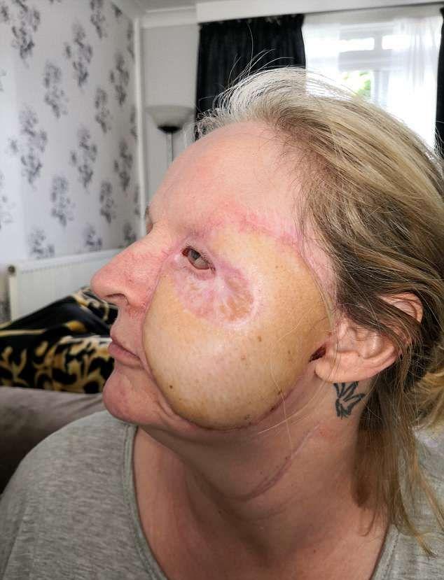 【閲覧注意】熱いストーブで頭を打った女性、感染症で顔の半分がケロイドになってしまう・・・・・(画像)・9枚目