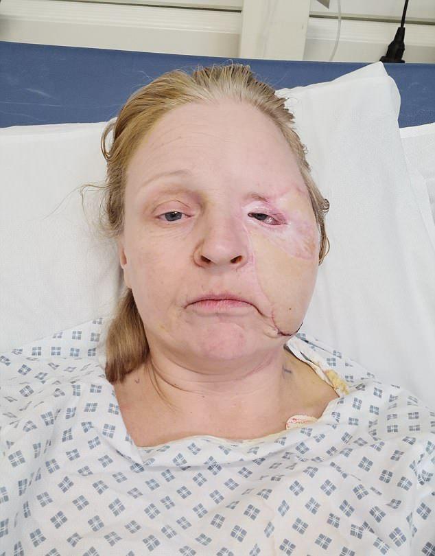 【閲覧注意】熱いストーブで頭を打った女性、感染症で顔の半分がケロイドになってしまう・・・・・(画像)・10枚目