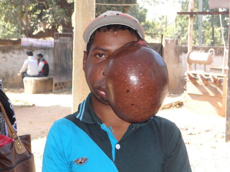【切除成功!】インド男性の顔面に出来た4.5㎏の腫瘍、完全に黒糖饅頭でワロタwwwwwww(画像)・1枚目