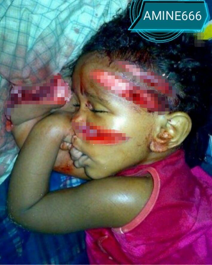 【衝撃】8歳の女の子、アル中の父親にマチューテで切り刻まれる・・・・・(画像)・1枚目
