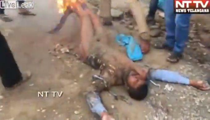 【インド】警察署の目の前で焼身自殺を図った男性、全身の60%に及ぶ火傷を負うも生還!!・2枚目