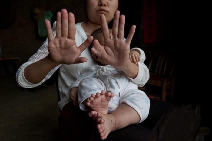【奇形児】インドでかつて神と崇められた少年、手術前の画像がヤバすぎる!!(画像)・4枚目