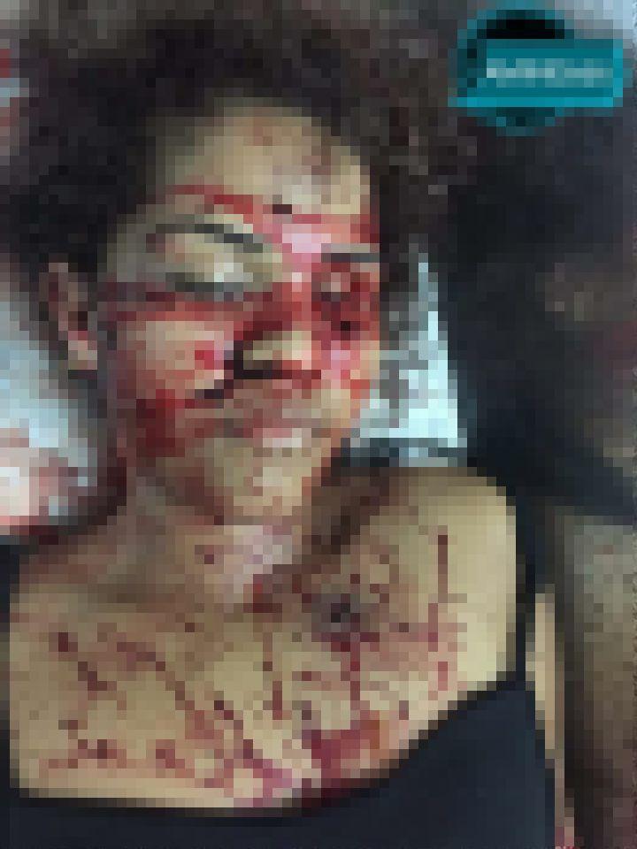 【衝撃】バーのトイレで彼氏に射殺された女性、顔面ぐちゃぐちゃ・・・・・(画像)・4枚目