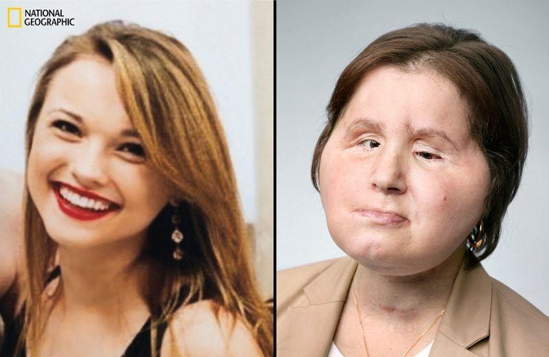 【絶望】18歳で自殺未遂した美少女、麻薬中毒で死亡した女性の顔を使って再建手術を受けるも・・・・・(画像)・1枚目
