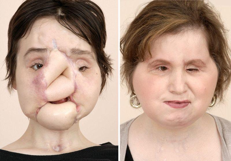 【絶望】18歳で自殺未遂した美少女、麻薬中毒で死亡した女性の顔を使って再建手術を受けるも・・・・・(画像)・3枚目