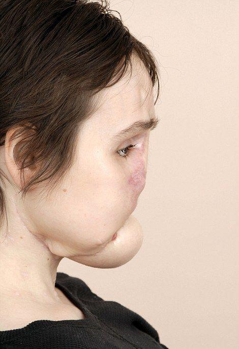 【絶望】18歳で自殺未遂した美少女、麻薬中毒で死亡した女性の顔を使って再建手術を受けるも・・・・・(画像)・4枚目