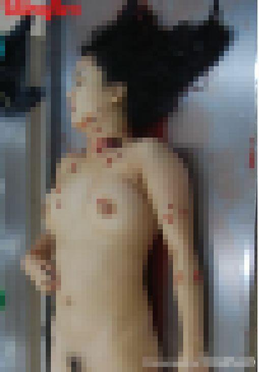 【グロ注意】中国でレイプ後メッタ刺しにされた20歳看護師女性、司法解剖の様子がヤバい!!(画像)・5枚目