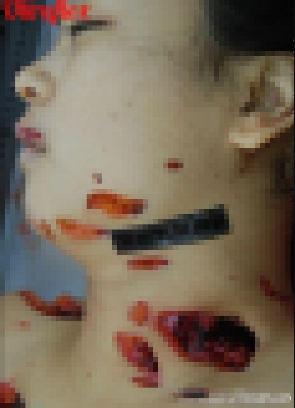 【グロ注意】中国でレイプ後メッタ刺しにされた20歳看護師女性、司法解剖の様子がヤバい!!(画像)・10枚目