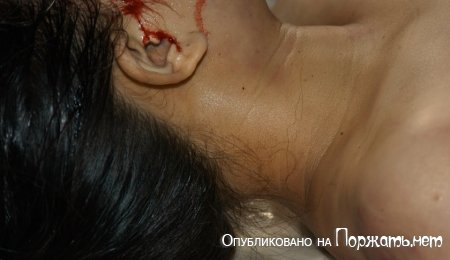 【閲覧注意】飛び降り自殺したアジア人女性、その場で全裸に剥かれてマンコまで調べられる・・・・・(画像)・13枚目
