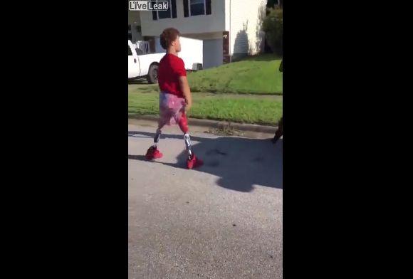 【マジ喧嘩】両足義足の少年のガチファイト、義足外しても良い動き過ぎ!!・1枚目