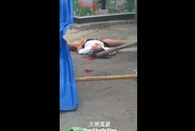 【グロ注意】バイク事故でマ○コがパックリ切り開かれた女性、下半身キツい・・・・・(動画)・1枚目