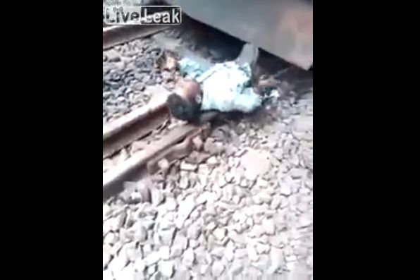 【奇跡】インドで列車に轢かれた男性、この状態からまさかの生還sugeeeeeee!!・2枚目