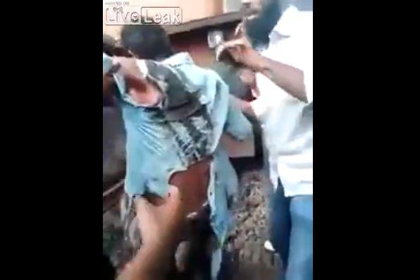 【奇跡】インドで列車に轢かれた男性、この状態からまさかの生還sugeeeeeee!!・3枚目