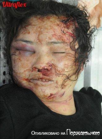 【遺体注意】連続殺人犯にレイプされて殺された女性、司法解剖でマ●コの中まで調べられる・・・・・(画像)・4枚目