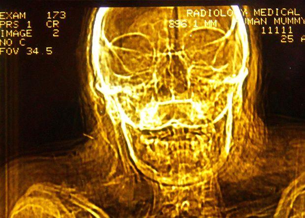 【閲覧注意】ポーランドで発見された13年前の首つり死体、全身に蜂とリスの巣を作られる・・・・・(画像)・1枚目
