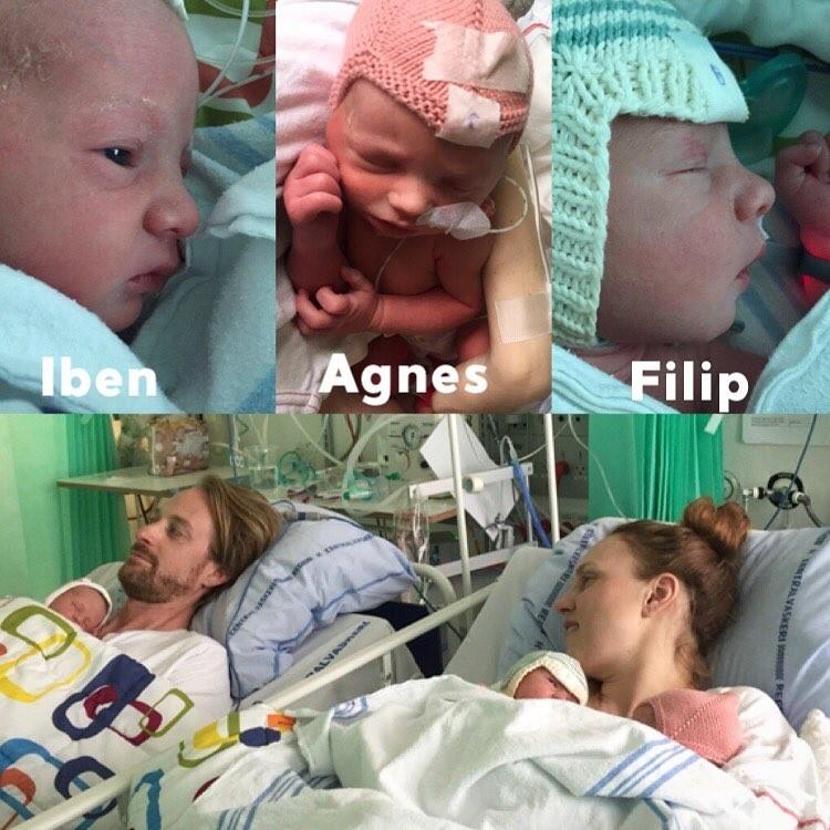 【破裂寸前】三つ子を妊娠したノルウェーの34歳女性、お腹が今にも破裂しそう・・・・・(画像)・6枚目