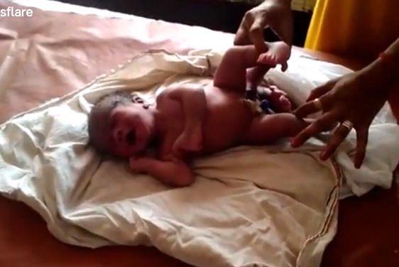 【神の奇跡】インドで生まれた4本足の赤ちゃん、生命の神秘凄過ぎだろ・・・・(動画)・3枚目