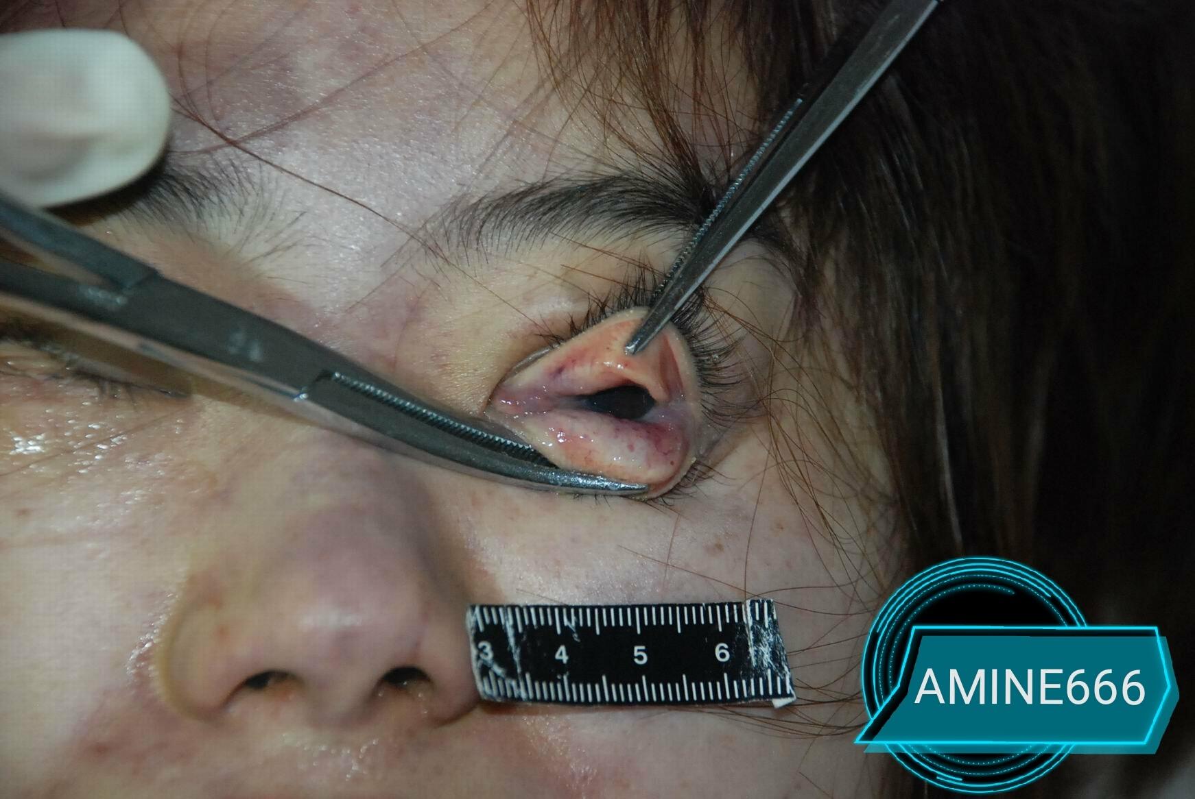 【レイプ殺人】中国でレイプされ絞殺された女性、なんで画像が出回るんだ・・・・・(画像)・7枚目