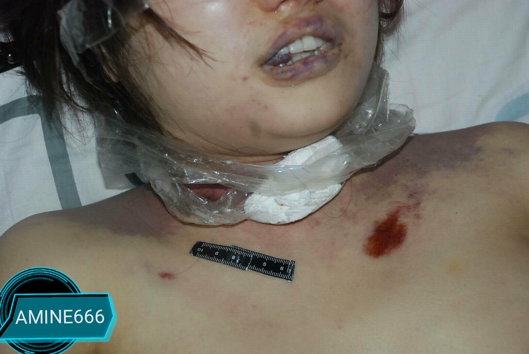 【レイプ殺人】中国でレイプされ絞殺された女性、なんで画像が出回るんだ・・・・・(画像)・12枚目