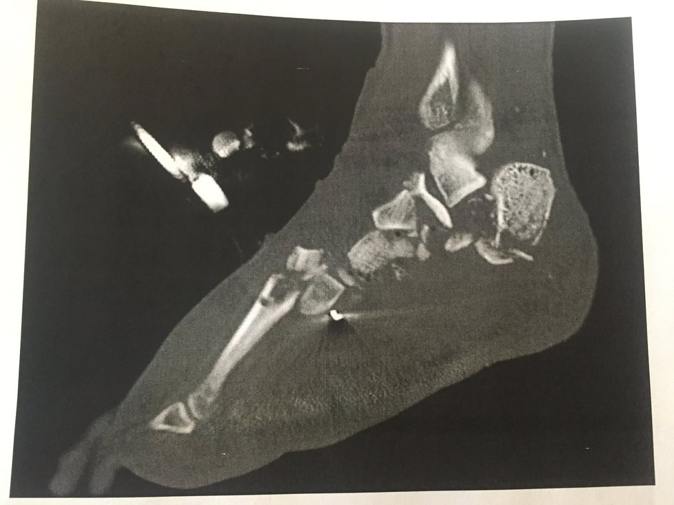 【カニバリズム】バイク事故で千切れた足を彼女と一緒に食べたカップル、頭おかしい・・・・・・(画像)・13枚目